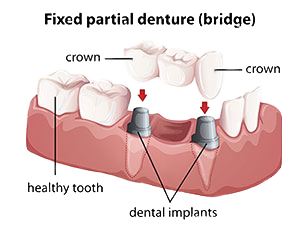 Dental Bridges | Roslindale Village Dental | Roslindale, MA 02131 | Aliakbar Esmaeili DDS