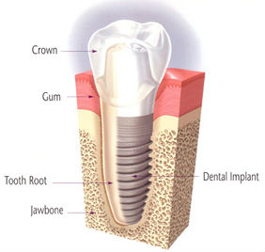 Single Tooth Implants | Roslindale Village Dental | Roslindale, MA 02131 | Aliakbar Esmaeili DDS