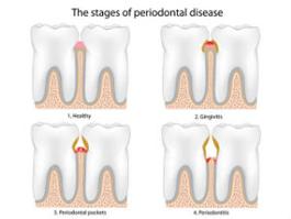 Periodontal Therapy | Roslindale Village Dental | Roslindale, MA 02131 | Aliakbar Esmaeili DDS