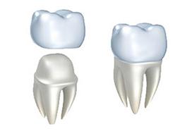 Porcelain Crowns | Roslindale Village Dental | Roslindale, MA 02131 | Aliakbar Esmaeili DDS