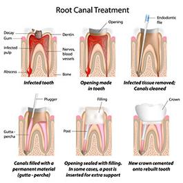 Root Canal Therapy | Roslindale Village Dental | Roslindale, MA 02131 | Aliakbar Esmaeili DDS
